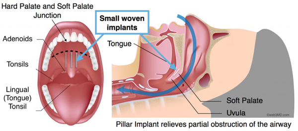 The Pillar Procedure