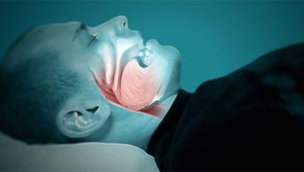 sleep apnea without snoring
