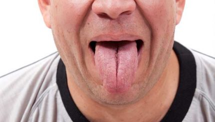 throat exercises reduce snoring