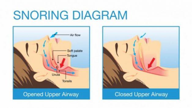 upper airways